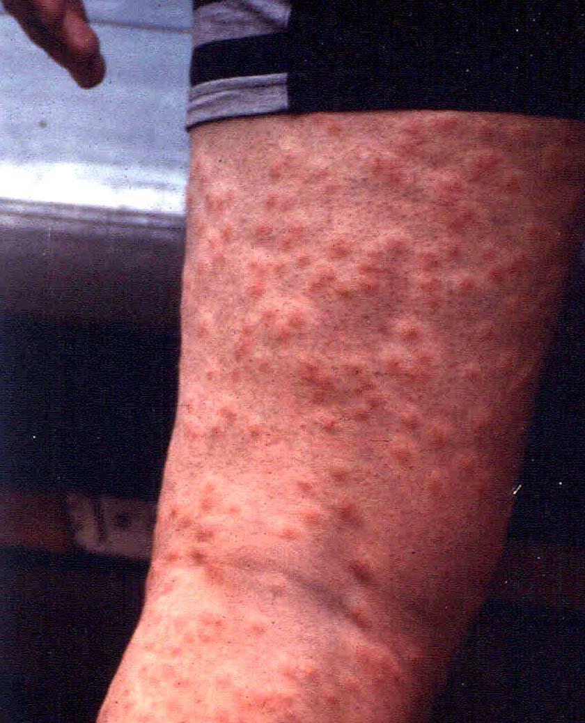 Allergisk mot klorvann symptomer